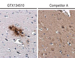 beta Amyloid (1-42) antibody – Conformation Specific_4