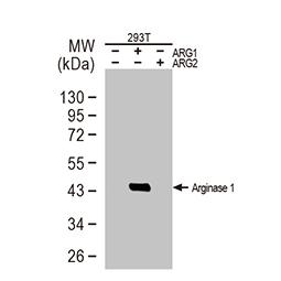 Arginase 1 antibody [GT825]
