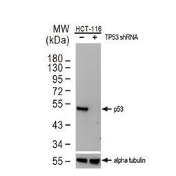 p53 antibody [DO1]