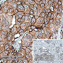 TOMM20 antibody (GTX133756)