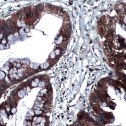 Thrombospondin 2 antibody (GTX134554)