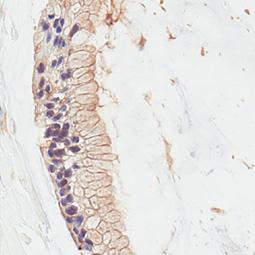 RAS (G12D Mutant) antibody [HL10] (GTX635362)