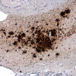 beta Amyloid (1-42) antibody – Conformation Specific (GTX134510)