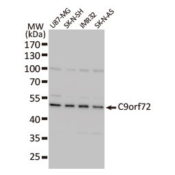 C9orf72 antibody [GT779] (GTX632041)