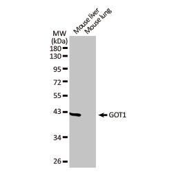 GOT1 antibody [GT1255] (GTX632033)