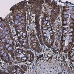 APC antibody [C3], C-term (GTX116009)