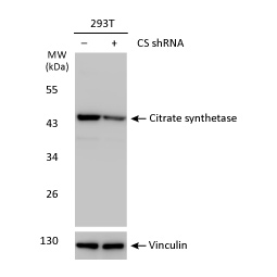 Citrate synthase antibody [N2C3]  (GTX110624)