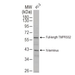 TMPRSS2 antibody [N2C3] (GTX100743)