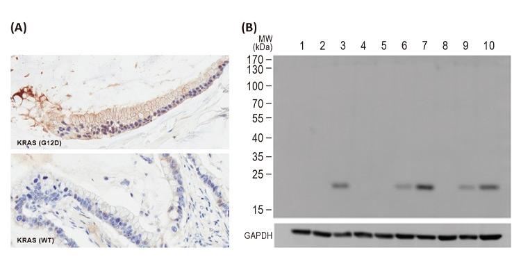 RAS (G12D Mutant) antibody [HL10](GTX635362)