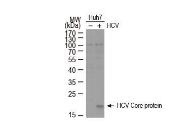 Hepatitis C Virus Core Antigen antibody