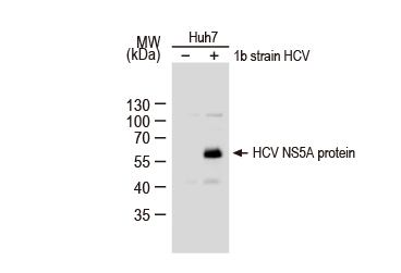 Hepatitis C Virus NS5A protein antibody