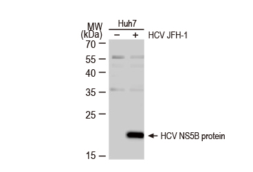 Hepatitis C Virus NS5B protein antibody