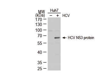 Hepatitis C Virus NS3 protein antibody