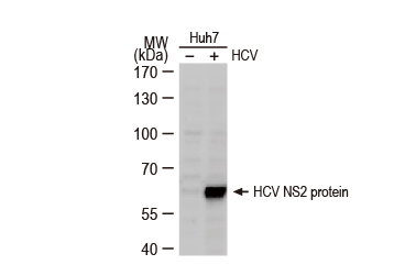 Hepatitis C virus NS2 protein antibody