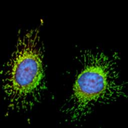 FIS1 antibody [GT9810] (GTX631209)