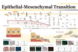 Epithelial–Mesenchymal Transition
