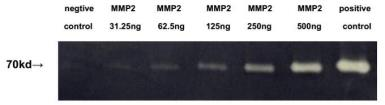 Mouse MMP2 protein (active). GTX00073-pro