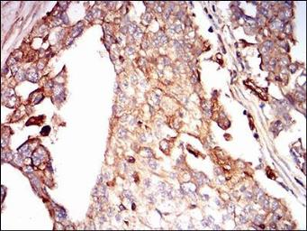 Anti-Syndecan-1 / CD138 antibody [1A3H4] used in IHC (Paraffin sections) (IHC-P). GTX00451