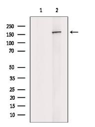 Anti-Nup153 antibody used in Western Blot (WB). GTX00649
