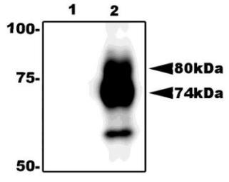 Anti-Herpes Virus 6 gQ1 antibody [119] used in Immunoprecipitation (IP). GTX00685