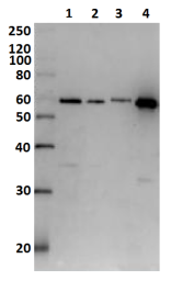 Anti-Diphtheria Toxin antibody used in Western Blot (WB). GTX00757