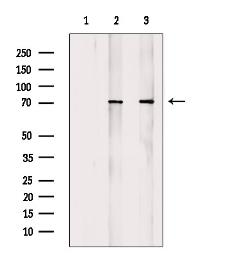 Anti-ATF2 (phospho Thr69) antibody used in Western Blot (WB). GTX00805