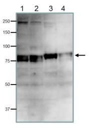 Anti-CDT2 antibody used in Western Blot (WB). GTX00893