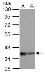 Anti-EDG7 antibody [N3C2], Internal used in Western Blot (WB). GTX100018