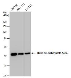 Anti-alpha Smooth Muscle Actin antibody used in Western Blot (WB). GTX100034