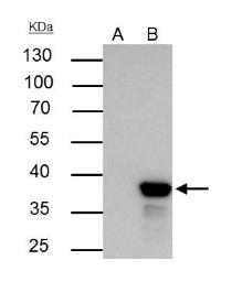 Anti-XLF antibody [N3C3] used in Immunoprecipitation (IP). GTX100092