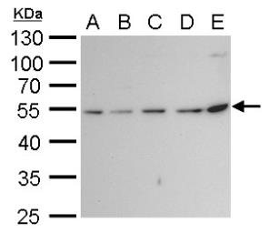 Anti-beta Tubulin 2 antibody used in Western Blot (WB). GTX100117