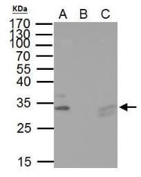 Anti-TIP30 antibody used in Immunoprecipitation (IP). GTX100119