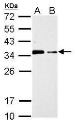 Anti-CIS antibody [C2C3], C-term used in Western Blot (WB). GTX100216