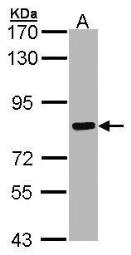 Anti-Cortactin antibody [N1], N-term used in Western Blot (WB). GTX100253