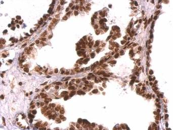 Anti-GRB2 antibody used in IHC (Paraffin sections) (IHC-P). GTX100294