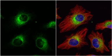 Anti-ERp57 antibody [C3], C-term used in Immunocytochemistry/ Immunofluorescence (ICC/IF). GTX100297