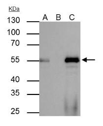 Anti-FOXA1 antibody used in Immunoprecipitation (IP). GTX100308