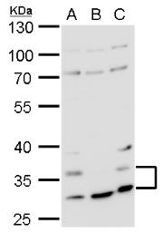 Anti-Histamine H4 Receptor antibody [N1N2], N-term used in Western Blot (WB). GTX100387