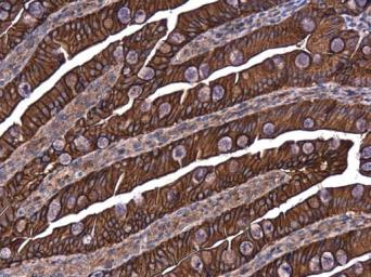 Anti-E-Cadherin antibody used in IHC (Paraffin sections) (IHC-P). GTX100443