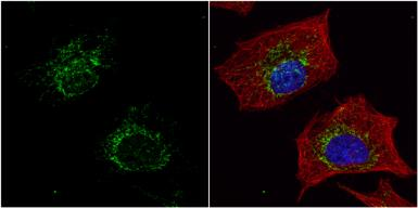 Anti-ACADM antibody used in Immunocytochemistry/ Immunofluorescence (ICC/IF). GTX100488