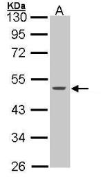 Anti-Cytokeratin 15 antibody used in Western Blot (WB). GTX100572