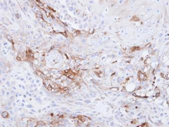 Anti-CD36 antibody [C1C3] used in IHC (Paraffin sections) (IHC-P). GTX100642