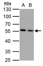 Anti-SQSTM1 / P62 antibody [N3C1], Internal used in Western Blot (WB). GTX100685