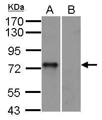 Anti-Syk antibody [N2C2], Internal used in Western Blot (WB). GTX100748