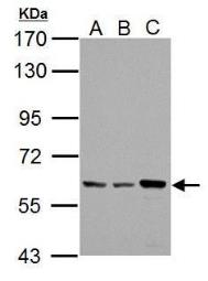 Anti-Pyruvate Kinase (liver/RBC) antibody used in Western Blot (WB). GTX101033