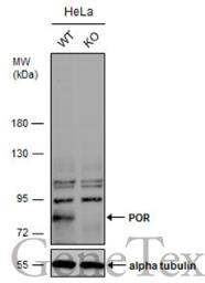 Anti-POR antibody [C2C3], C-term used in Western Blot (WB). GTX101101