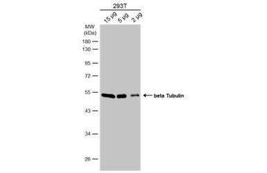 Anti-beta Tubulin antibody used in Western Blot (WB). GTX101279