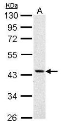 Anti-ASS1 antibody used in Western Blot (WB). GTX101344