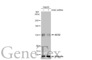 Anti-ACE2 antibody [N1N2], N-term used in Western Blot (WB). GTX101395
