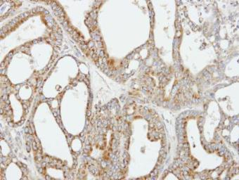 Anti-COX5B antibody [N1C3] used in IHC (Paraffin sections) (IHC-P). GTX101486